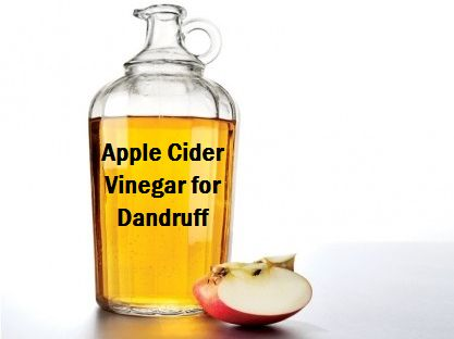 vinegar good for dandruff