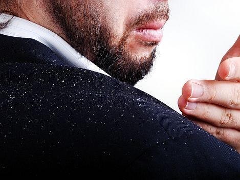 how do I get rid of dandruff