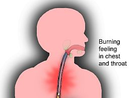 how-to-get-rid-of-heartburn-1