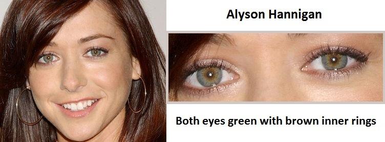 alyson-hannigan-central-heterochromia-3