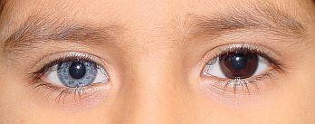 complete-heterochromia