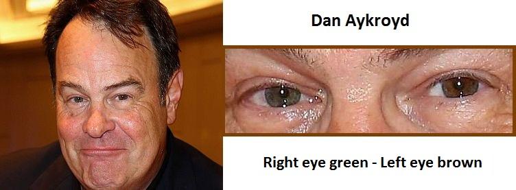 dan-aykroyd-complete-heterochromia-3