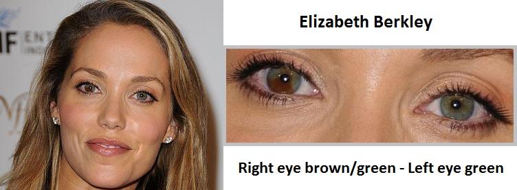 elizabeth-berkley-sectoral-heterochromia-3