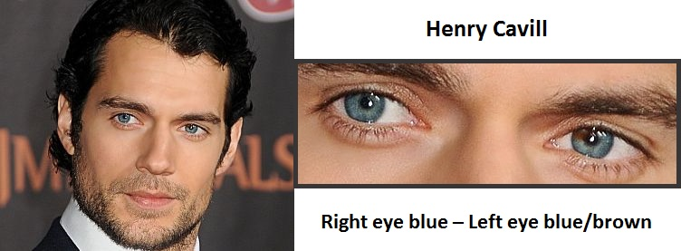 henry-cavill-sectoral-heterochromial-3