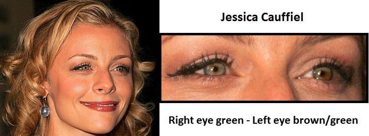 jessica-cauffiel-sectoral-heterochromia-3