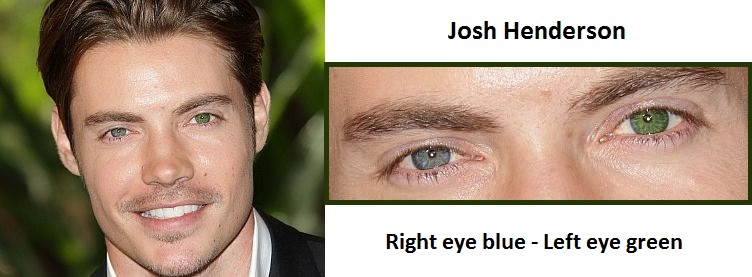 Celebrities With Heterochromia Iridis