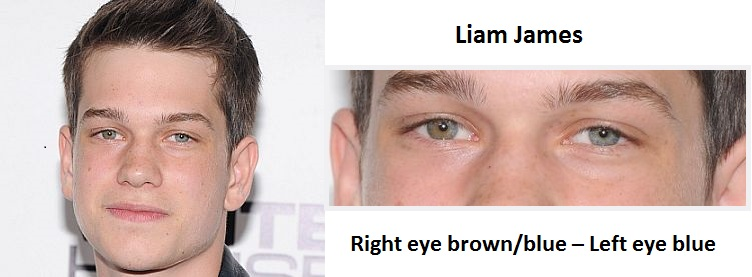 liam-james-sectoral-heterochromia-3