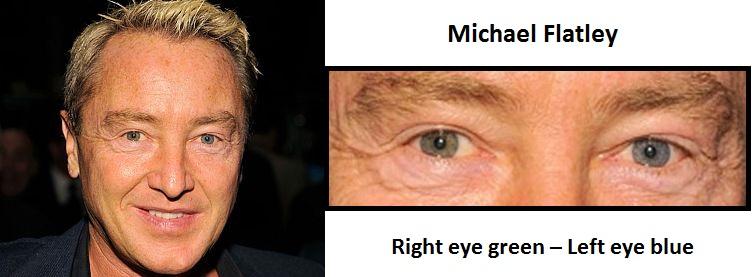michael-flatley-complete-heterochromia-3