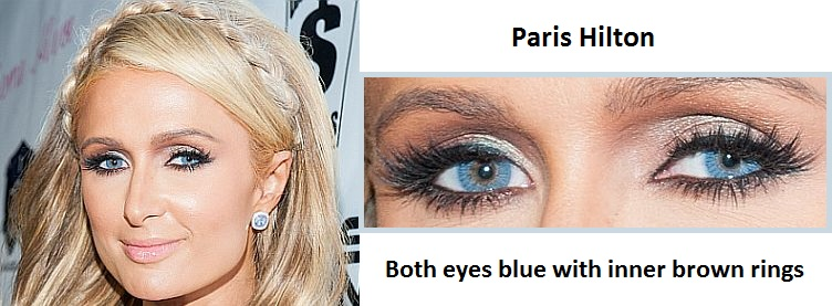 Actresses With Limbal Rings