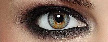 sectoral-heterochromia