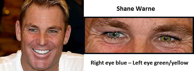 shane-warne-complete-heterochromia-3