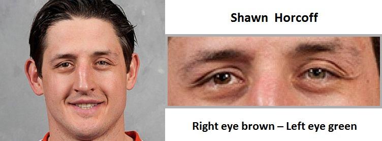 shawn-horcoff-complete-heterochromia-3
