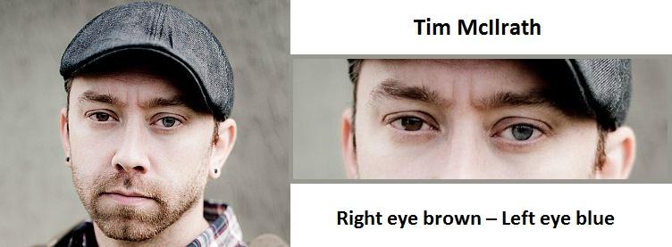 tim-mcilrath-complete-heterochromia-3