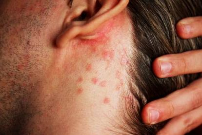 seborrheic-dermatitis-small-lumps-behind-ear